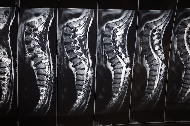 Vertebra X Ray Wellness Chamberlain Chiropractic Best chiropractor West Chester PA